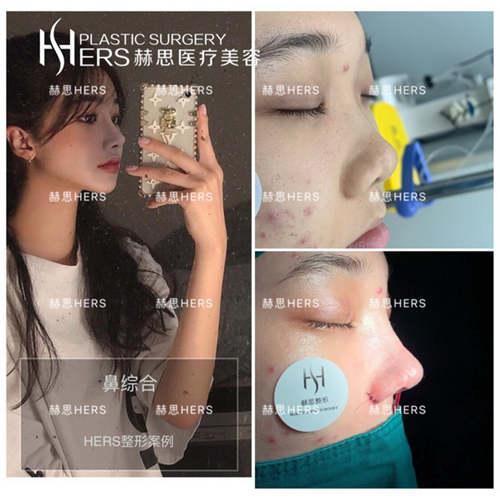 做双眼皮大概多少钱_广州怎么做双眼皮