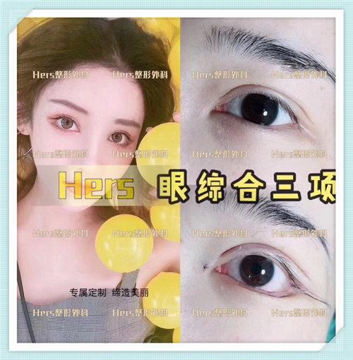 广州单双眼皮